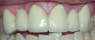 Replacing FrontMissing Teeth After